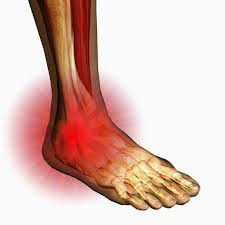 San Diego Chiropractic, Massage help w/ pain relief and treatment of leg  and ankle trouble