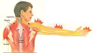 Carpel Tunnel Syndrome arm areas of pain relief offered by Chiropractors of San Diego Chiropractic Massage.