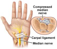 Carpel Tunnel Syndrome pain relief offered by Chiropractors of San Diego Chiropractic Massage.
