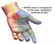 Arm and Palm Pain treatment by San Diego Chiropractic and Massage