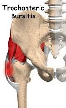 San Diego Chiropractic, Massage help w/ pain relief and treatment of leg and hip trouble