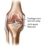 San Diego Chiropractic, Massage help w/ pain relief and treatment of leg and joint trouble