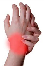 Arm and wrist Pain treatment by San Diego Chiropractic and Massage